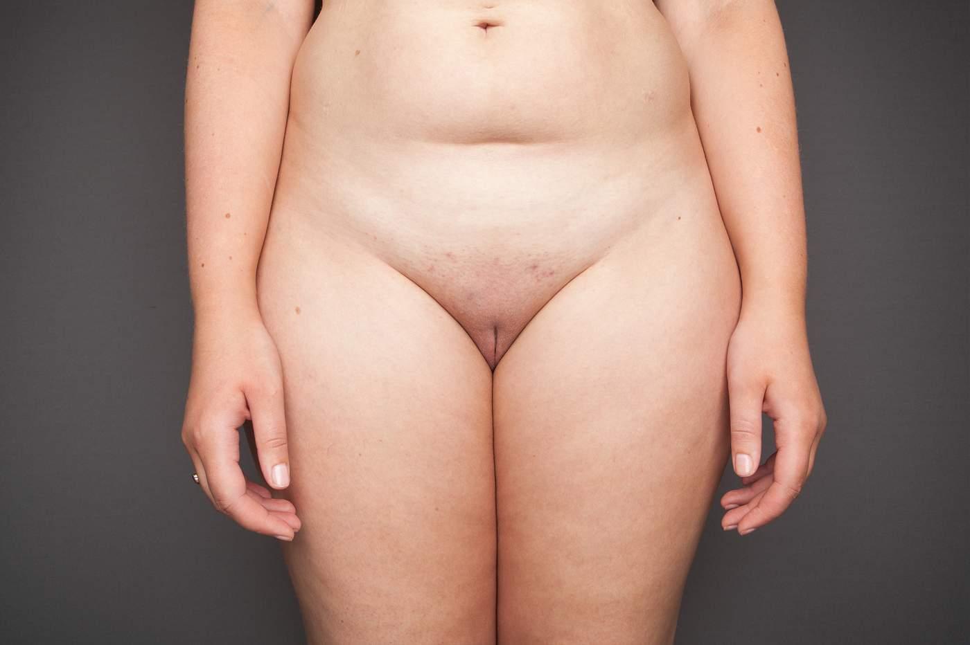 Pics fat vagina Fat Hairy